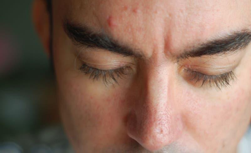 Un golpe contra el acné: Científicos realizan importante hallazgo para diseñar vacuna terapéutica