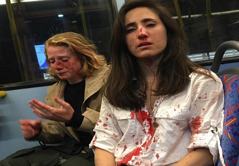 Denuncian brutal ataque lesbofóbico en Londres