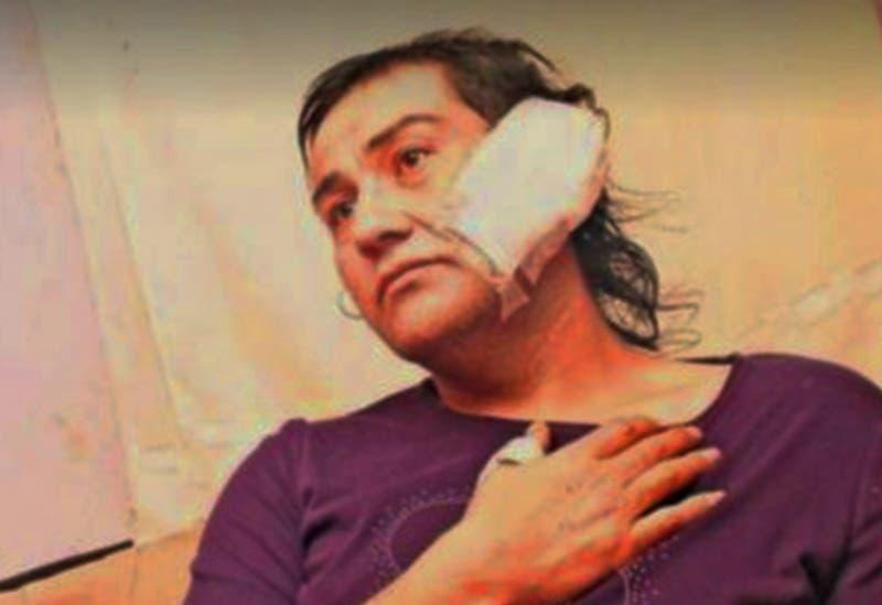 Movilh denuncia ataque con machete contra mujer trans: Sufrió cortes en su cara, cabeza y oreja
