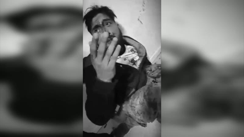 Maltrato laboral: Trabajador venezolano acusa a su jefe de haberlo golpeado brutalmente
