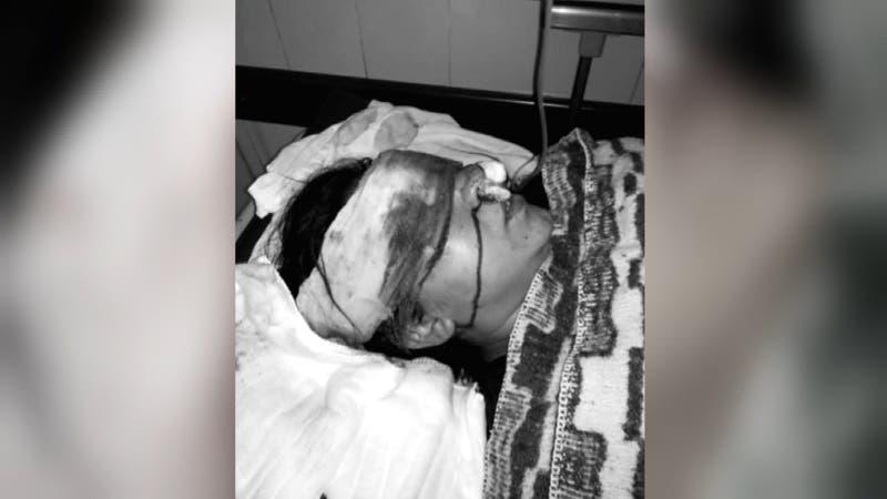 INDH anuncia querella contra Carabineros por mujer que sufrió impacto de lacrimógena en su rostro