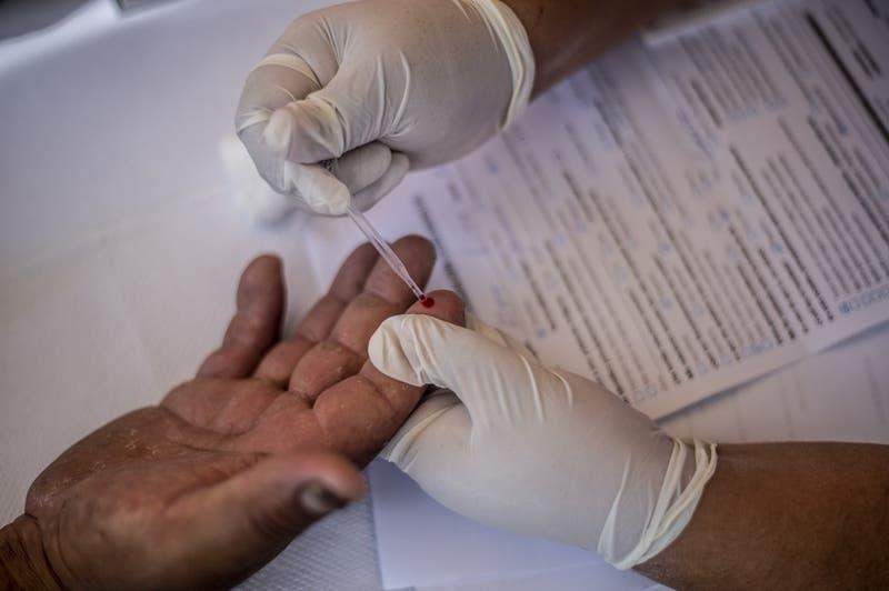 Segundo caso mundial de curación de un paciente con el virus del SIDA