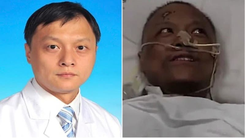 Dos médicos de Wuhan se recuperan de COVID-19 y descubren un cambio de color en su piel