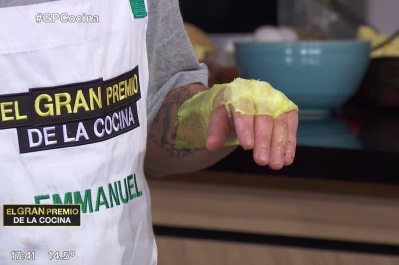 Gran susto en vivo: participante de programa de cocina argentino sufrió terrible quemadura