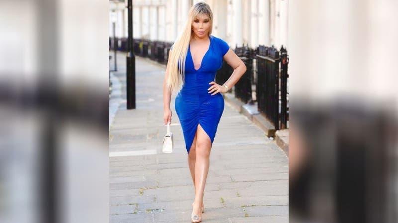 """Ex """"Ken Humano"""" se somete a cirugías para parecerse a Jennifer López y Kim Kardashian"""