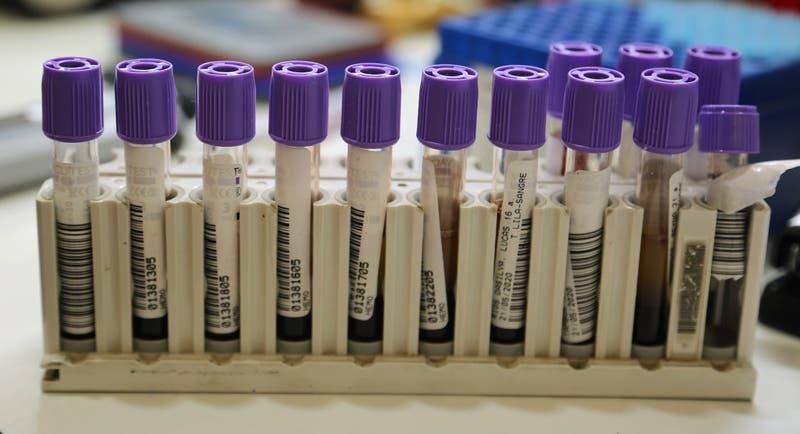 Qué es 'Chapare Arena Virus', la amenaza similar al ébola que alarma a Bolivia