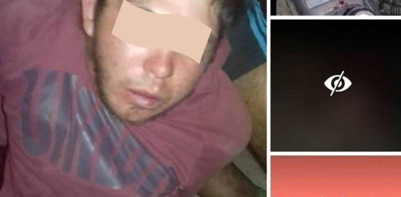 Argentina: policía desmiente que vecinos cortaron dedos de ladrón
