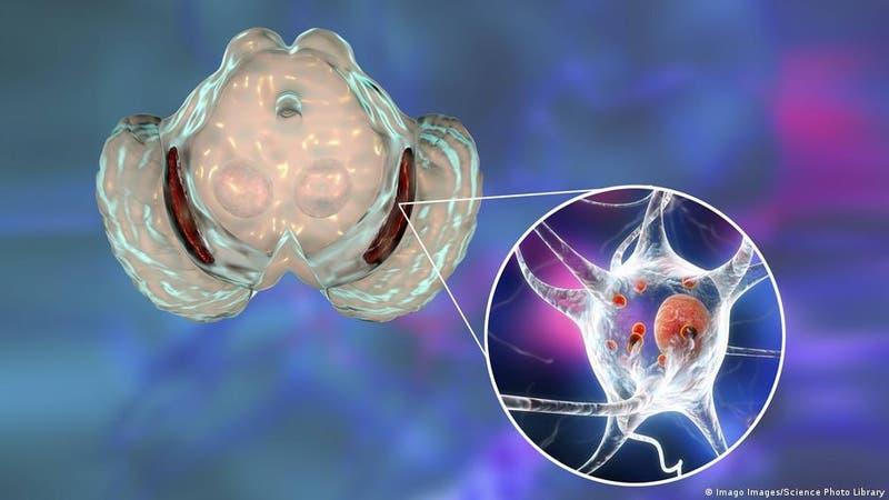 Injertos de células cerebrales revierten síntomas de Parkinson en monos