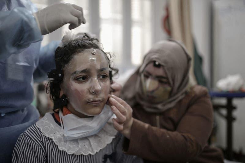 Máscaras impresas en 3D para curar rostros quemados en Gaza