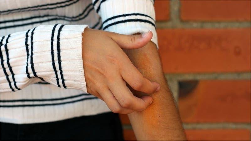 Coronavirus: el estudio que muestra que las lesiones en la piel pueden ser un síntoma del COVID-19