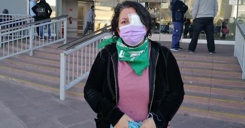 Denuncian que ex candidata a constituyente sufrió lesión ocular en protesta afuera del ex Congreso
