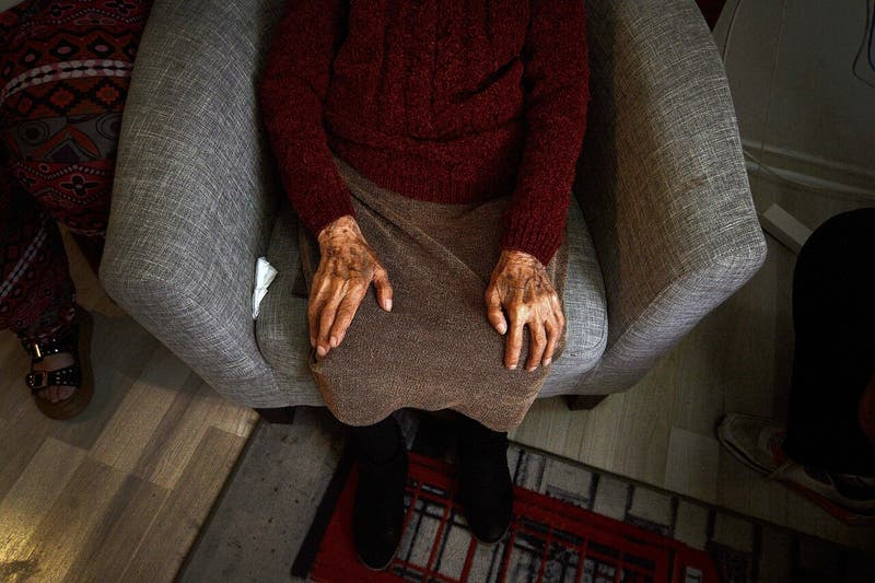 Científico chileno crea examen PCR para detectar el Alzheimer