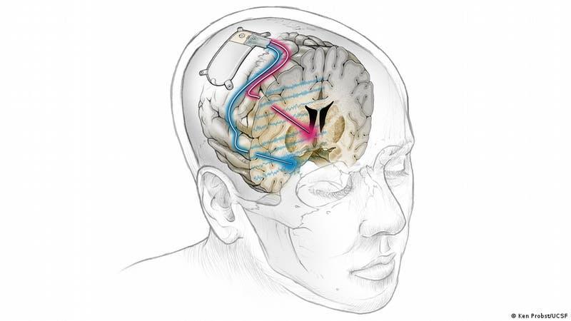 Primer implante cerebral del mundo trata con éxito depresión severa de un paciente